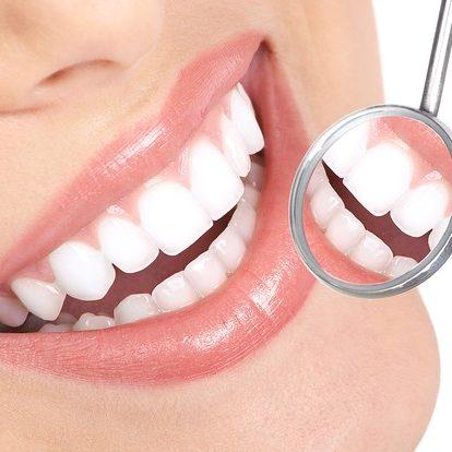 prevenzione-ed-igiene-dentale